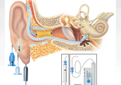 Color Illustration: Cochlear Micro-Catheter